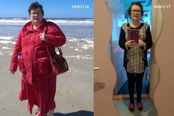 Gastric Bypass Ervaring Clara van Donderen