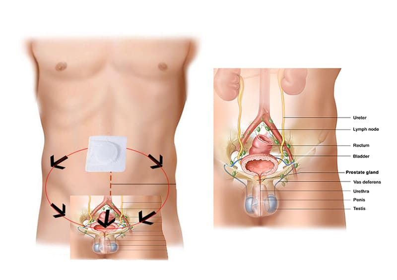 Prostaplast prostaat