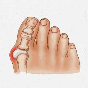 voet knobbels