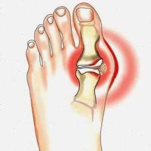 valgorect voet schema